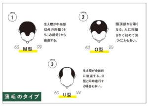 AGA治療薄毛の種類